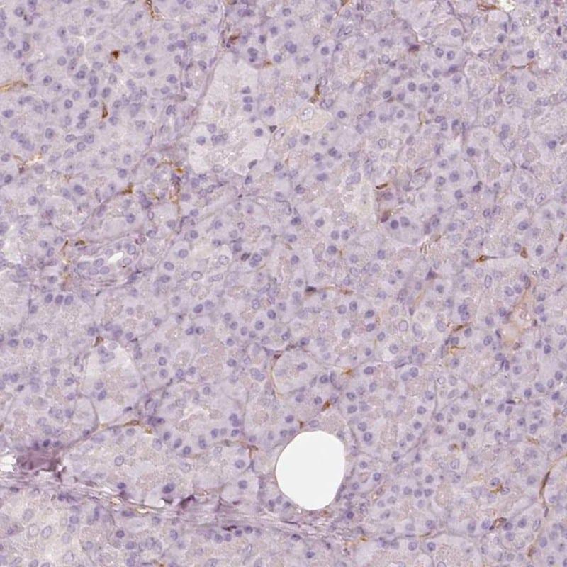 Fascin Antibody in Immunohistochemistry (IHC)