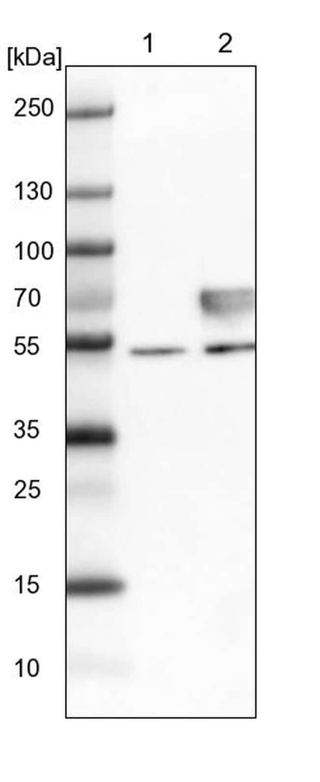 CNOT4 Antibody in Western Blot (WB)