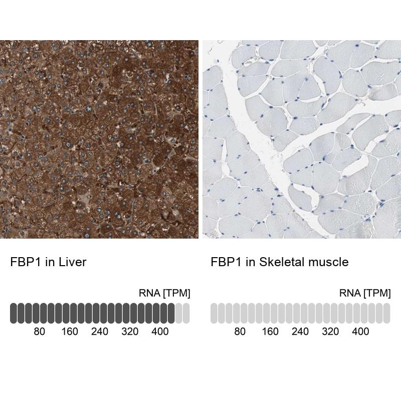 FBP1 Antibody in Immunohistochemistry (IHC)