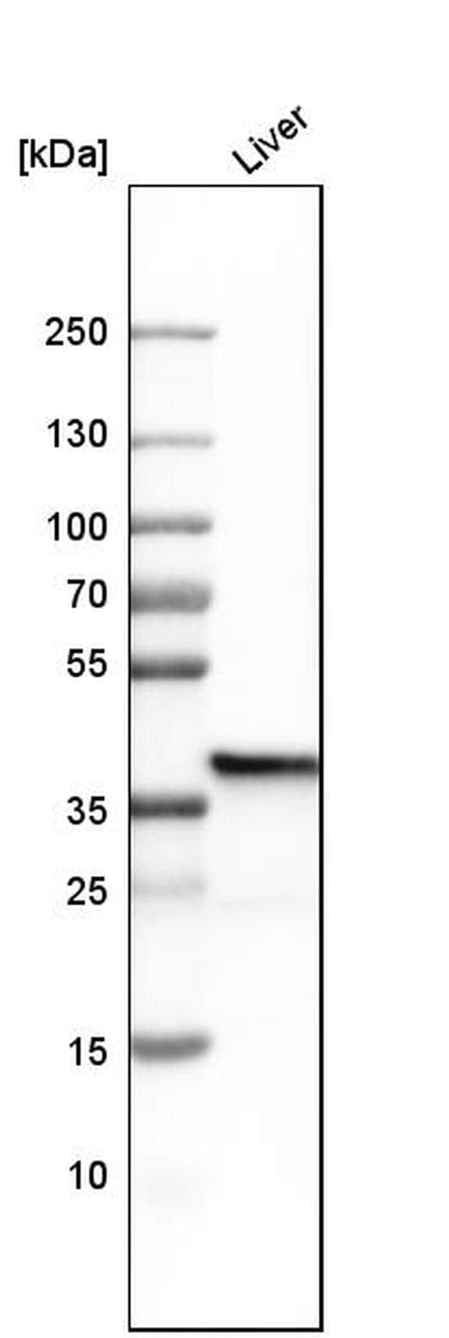 FBP1 Antibody in Western Blot (WB)