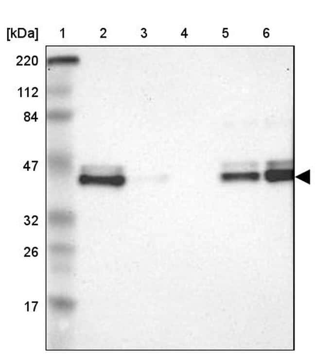 IkB epsilon Antibody in Western Blot (WB)