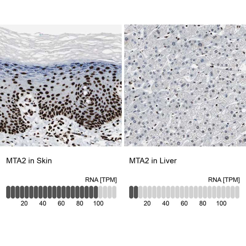 MTA2 Antibody in Relative expression