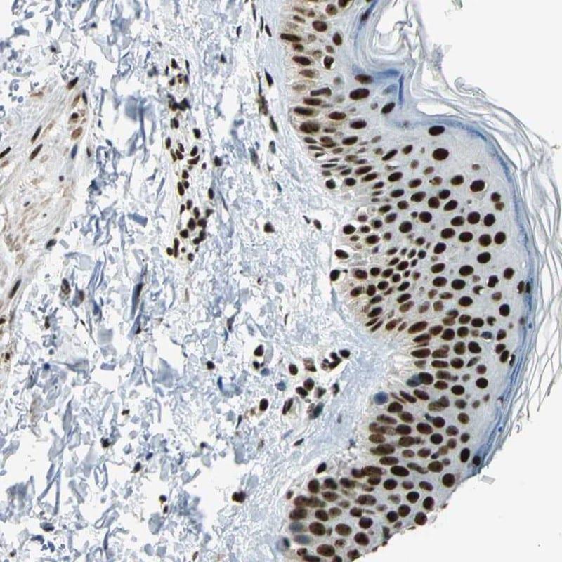 UBF-1 Antibody in Immunohistochemistry (IHC)