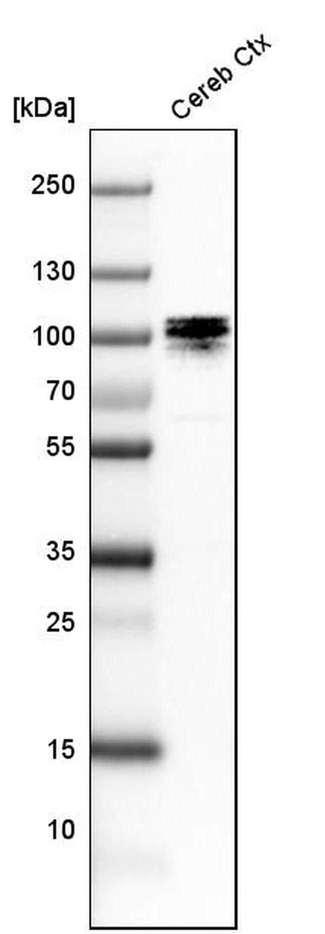 UBF-1 Antibody in Western Blot (WB)