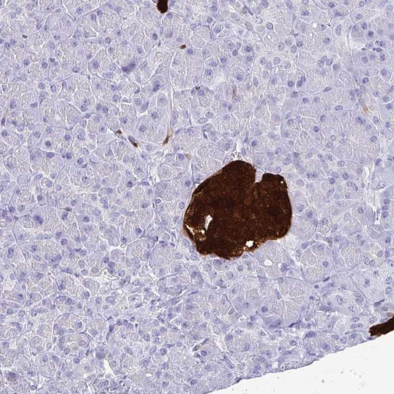 SCGN Antibody in Immunohistochemistry (IHC)