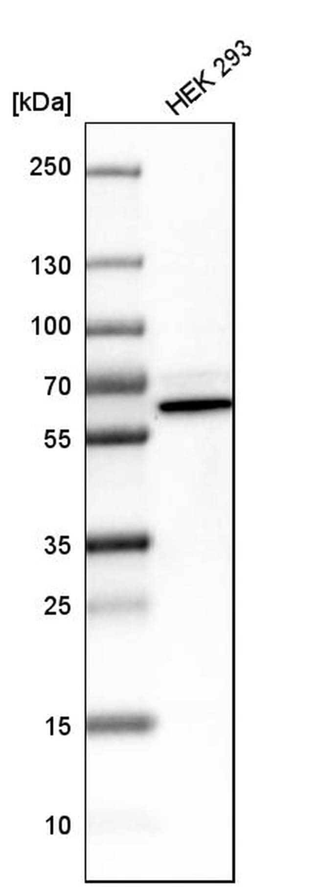 PNK Antibody in Western Blot (WB)