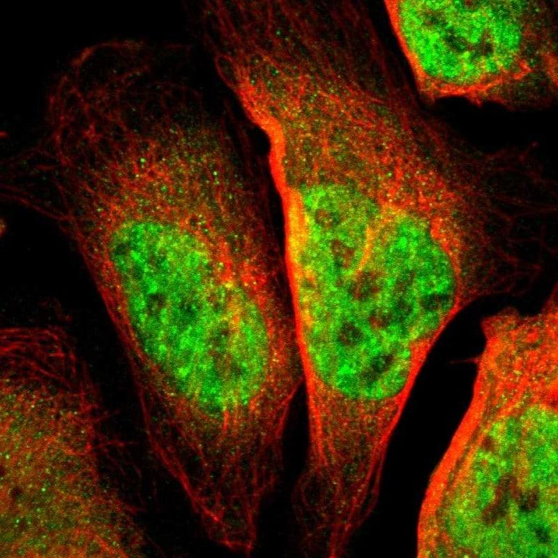 TSHZ1 Antibody in Immunocytochemistry (ICC/IF)