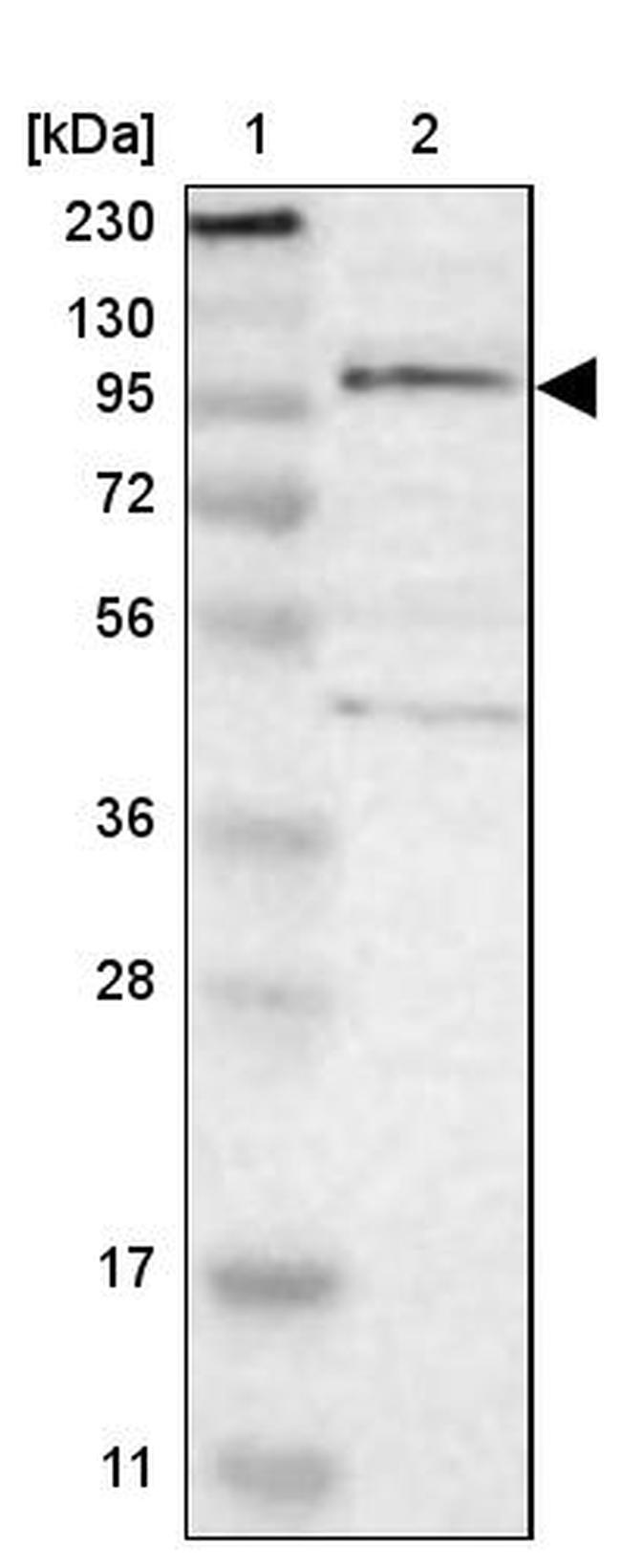 TSHZ1 Antibody in Western Blot (WB)