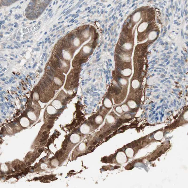 KHK Antibody in Immunohistochemistry (IHC)