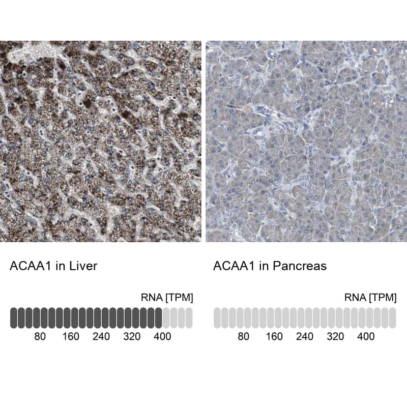 ACAA1 Antibody in Relative expression