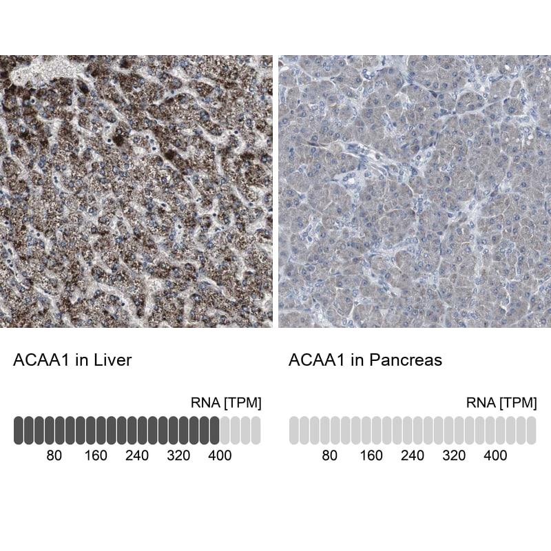 ACAA1 Antibody in Immunohistochemistry (IHC)