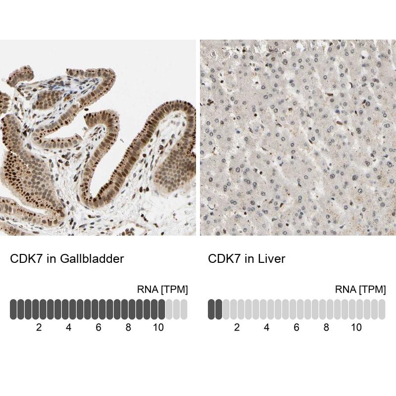 CDK7 Antibody in Relative expression
