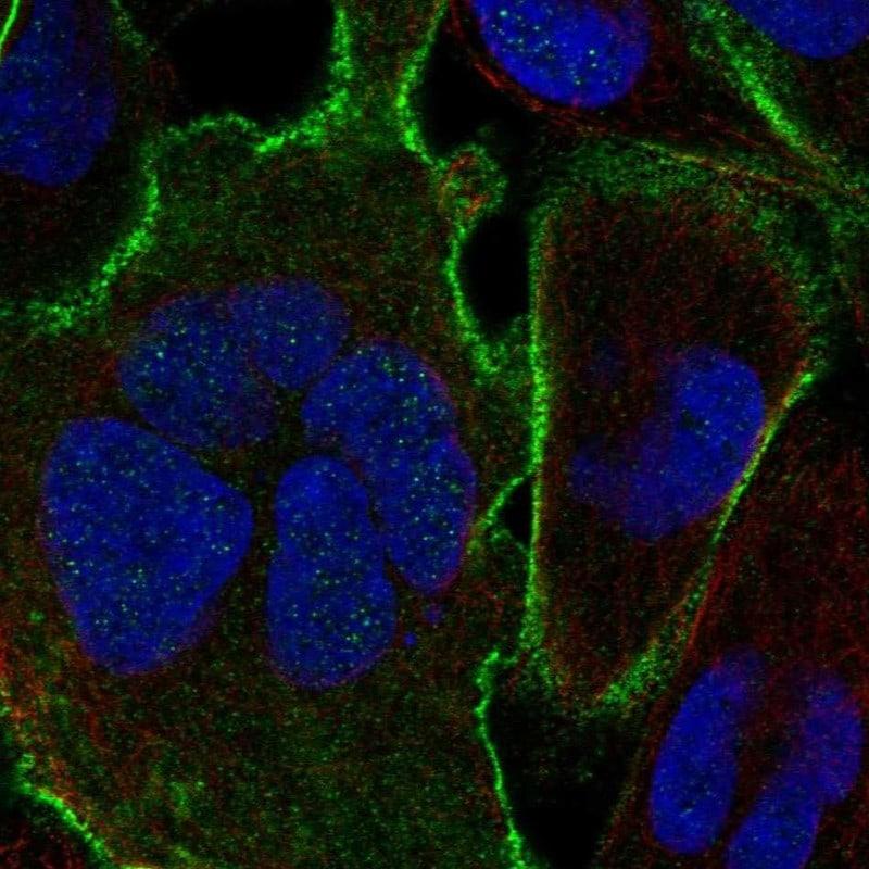 Ankyrin B Antibody in Immunocytochemistry (ICC/IF)