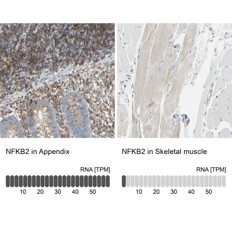 NFkB p52 Antibody in Relative expression