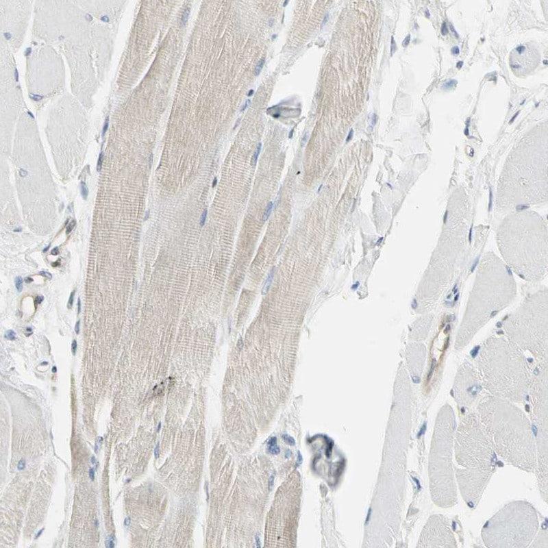NFkB p52 Antibody in Immunohistochemistry (IHC)