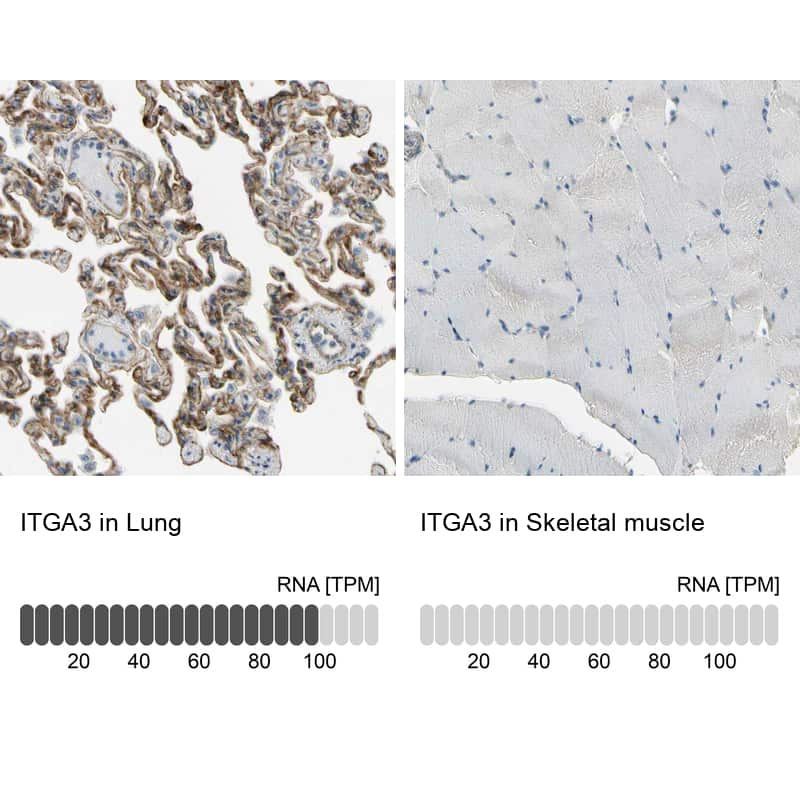 ITGA3 Antibody in Relative expression