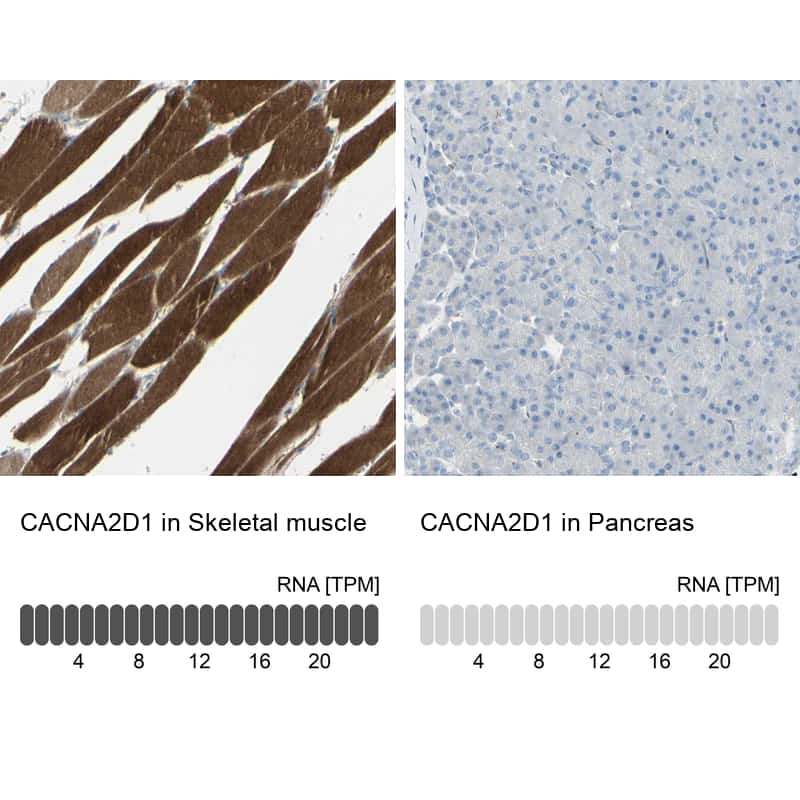 CACNA2D1 Antibody in Relative expression