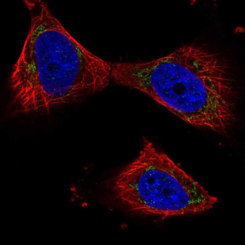PPP3CB Antibody in Immunofluorescence (IF)