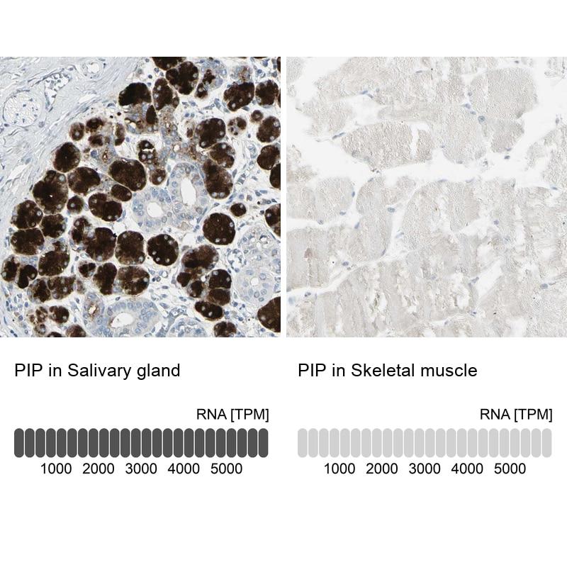 GCDFP-15 Antibody in Relative expression