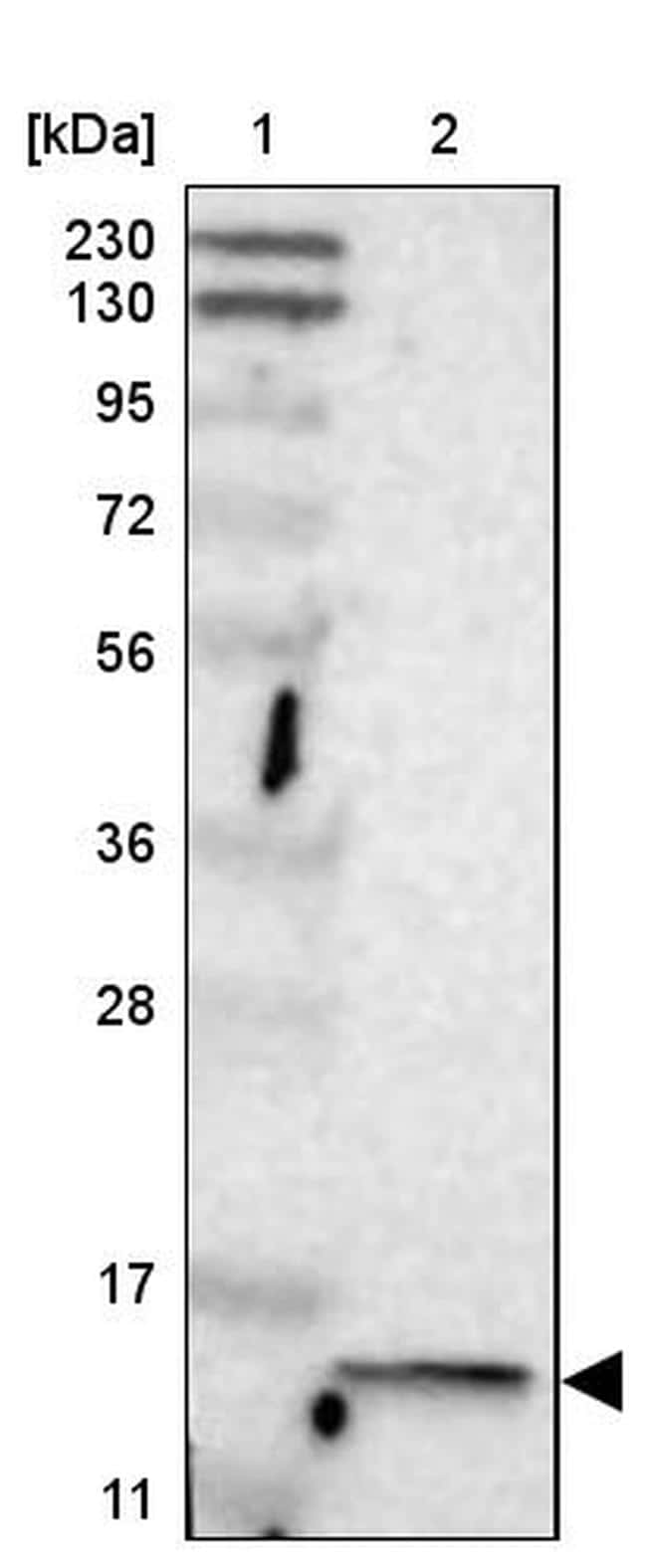 GCDFP-15 Antibody in Western Blot (WB)