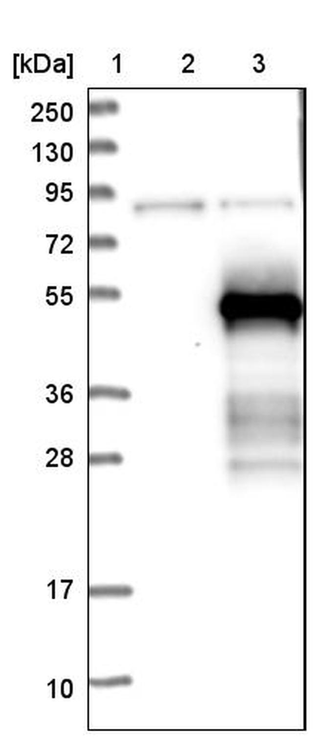ZNF174 Antibody in Western Blot (WB)