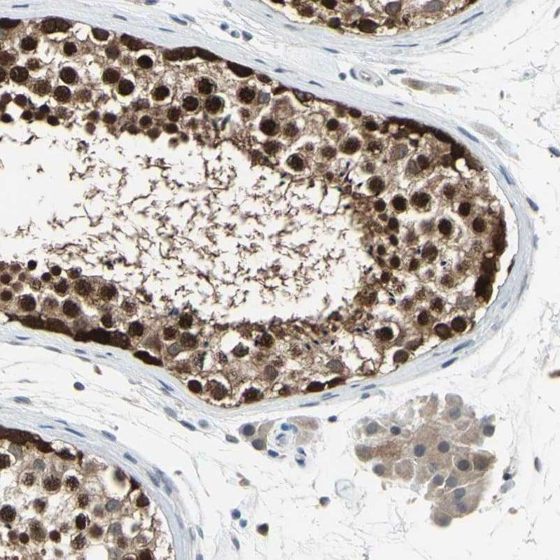 HSPA4 Antibody in Immunohistochemistry (IHC)
