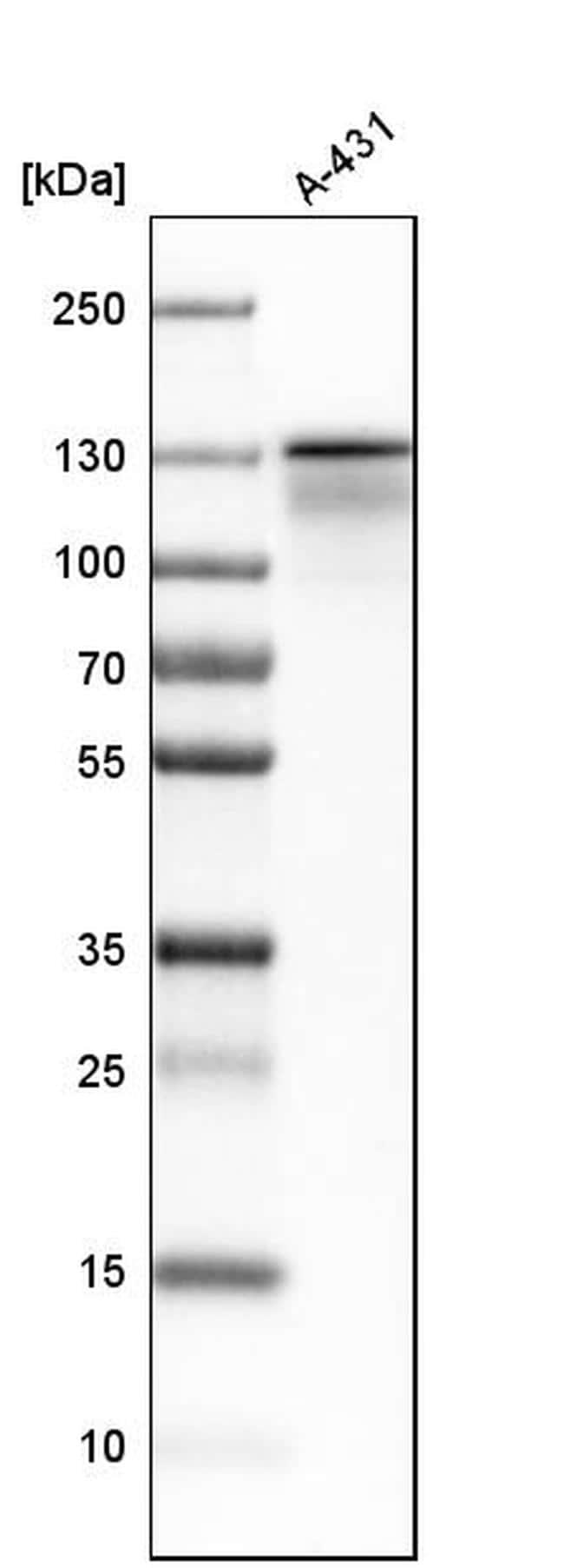 KIF11 Antibody in Western Blot (WB)