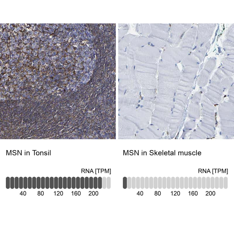 Moesin Antibody in Relative expression