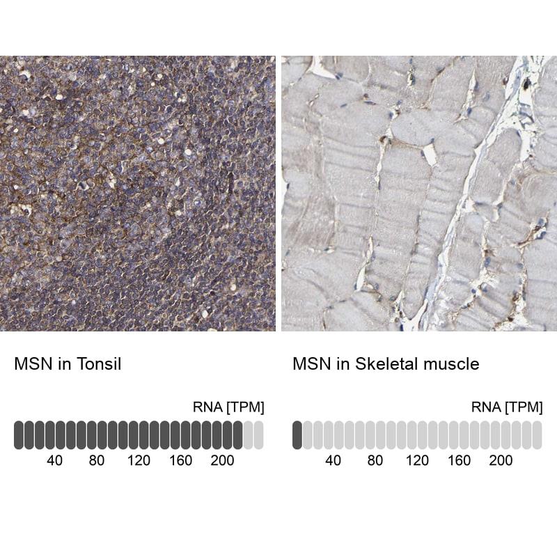 Moesin Antibody in Immunohistochemistry (IHC)