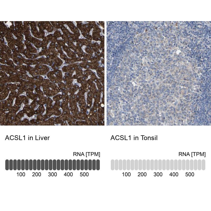 ACSL1 Antibody in Relative expression
