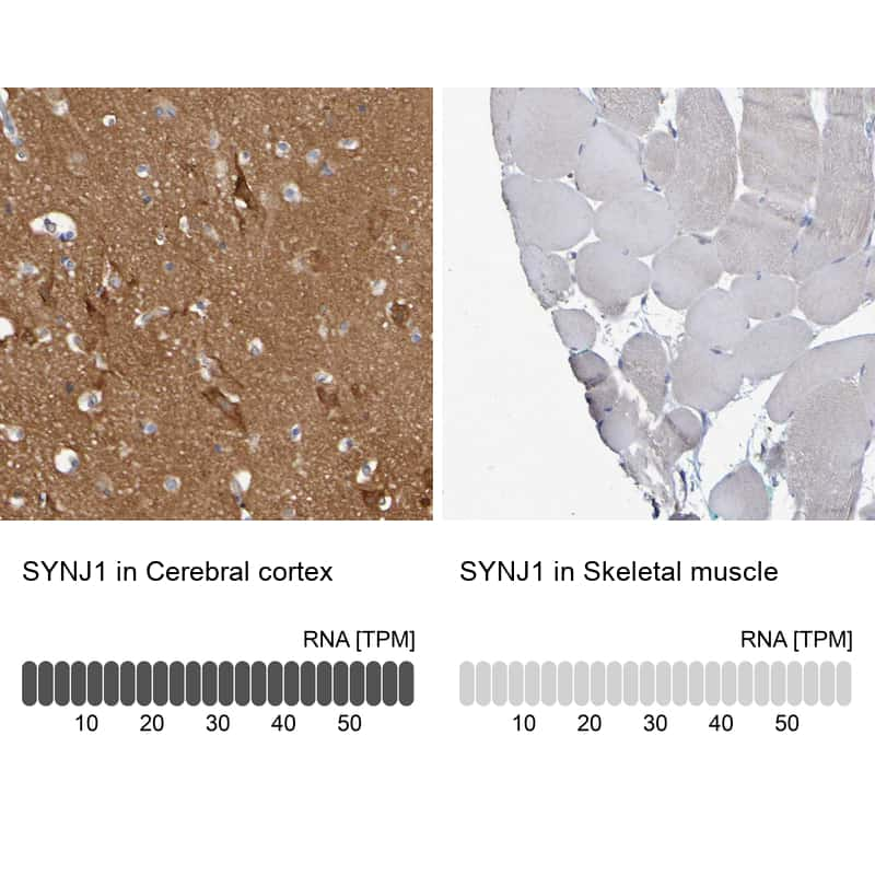 Synaptojanin 1 Antibody in Relative expression