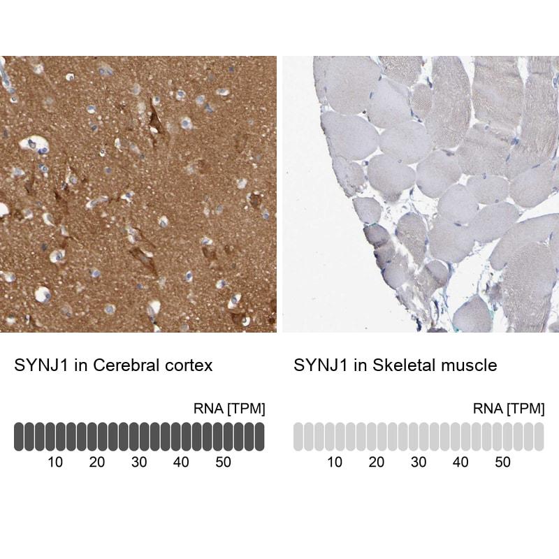 Synaptojanin 1 Antibody in Immunohistochemistry (IHC)