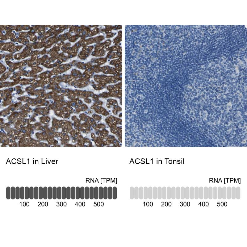 ACSL1 Antibody in Immunohistochemistry (IHC)