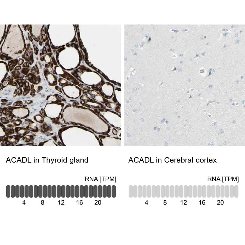 ACADL Antibody in Relative expression