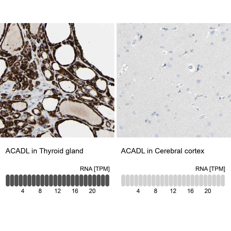 ACADL Antibody in Immunohistochemistry (IHC)
