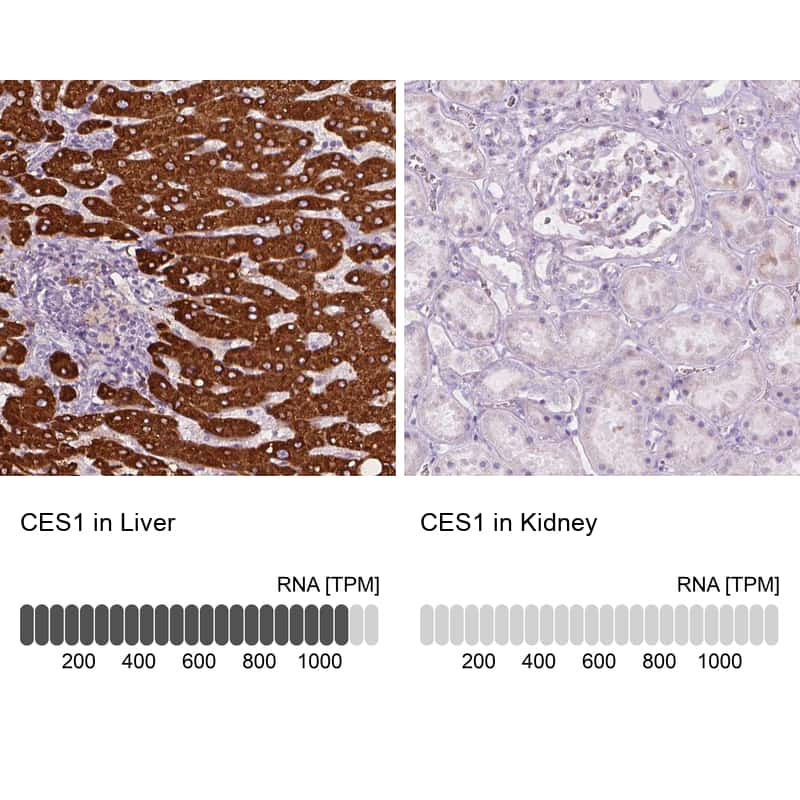 CES1 Antibody in Relative expression