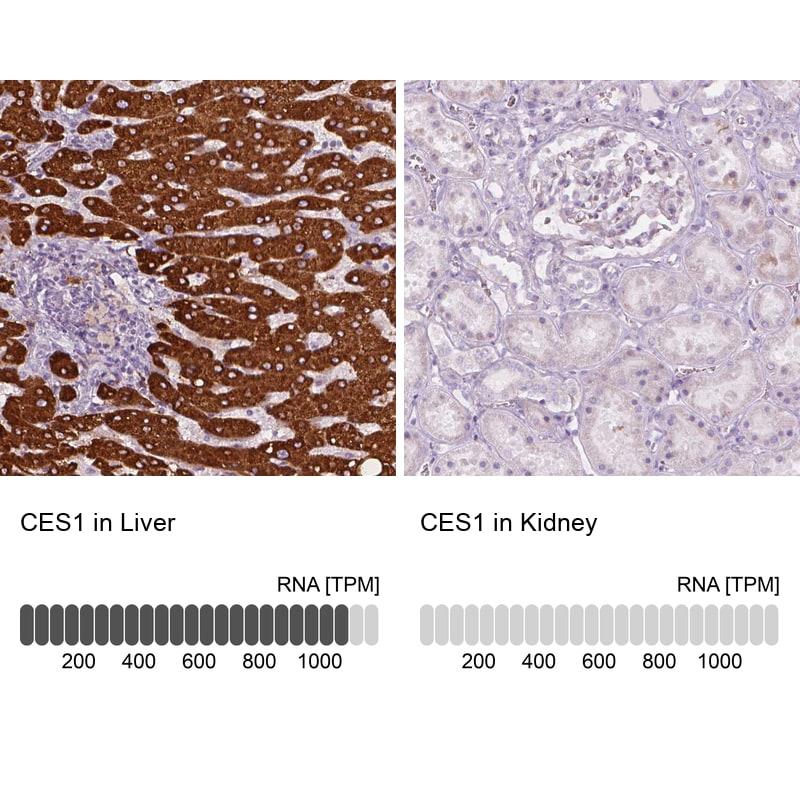 CES1 Antibody in Immunohistochemistry (IHC)