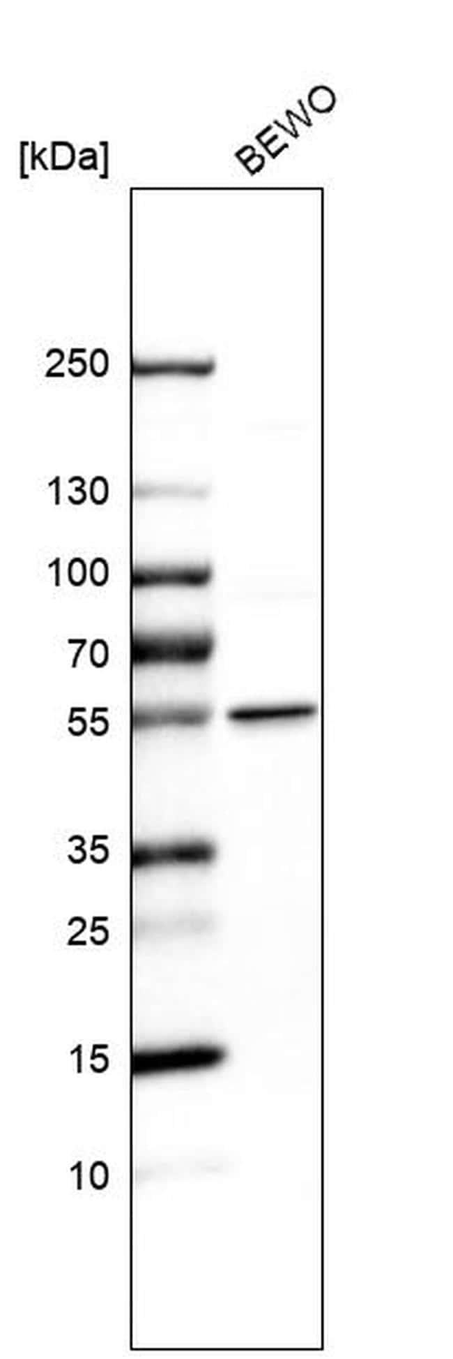 LPCAT1 Antibody in Western Blot (WB)