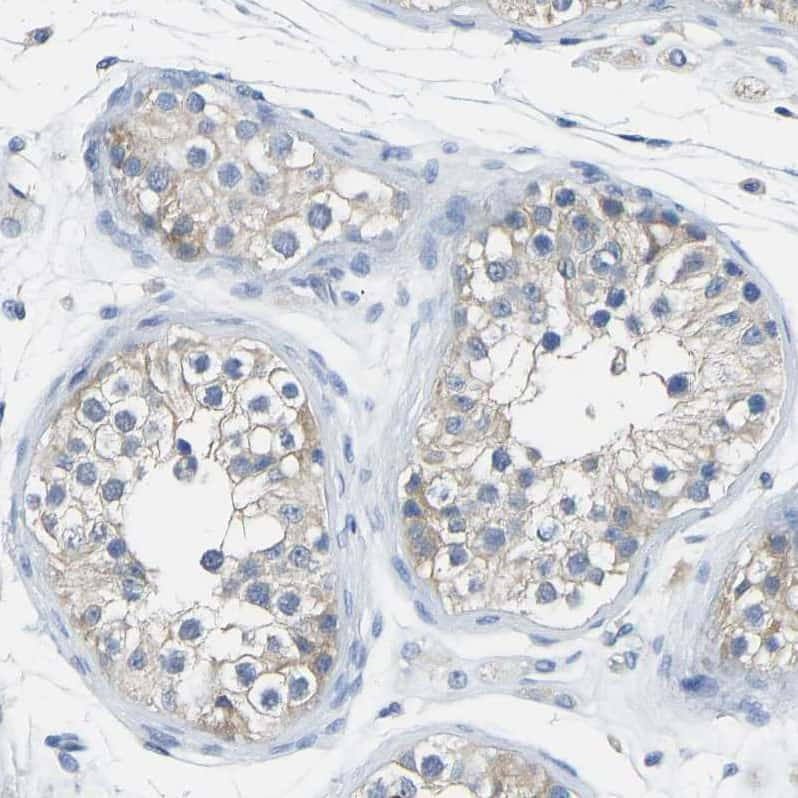 Calcineurin A Antibody in Immunohistochemistry (IHC)