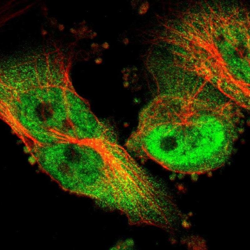 VCP Antibody in Immunofluorescence (IF)