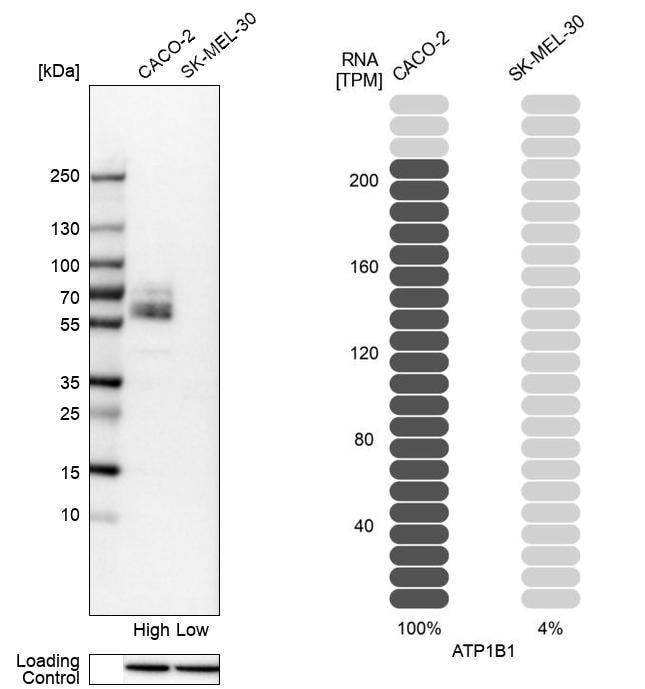 ATP1B1 Antibody in Western Blot (WB)