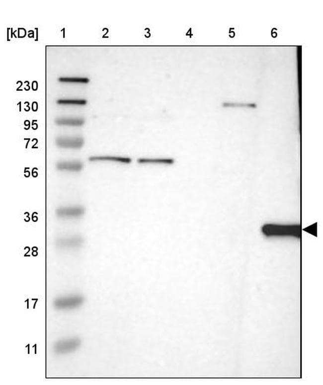 HLA-DQB1 Antibody in Western Blot (WB)