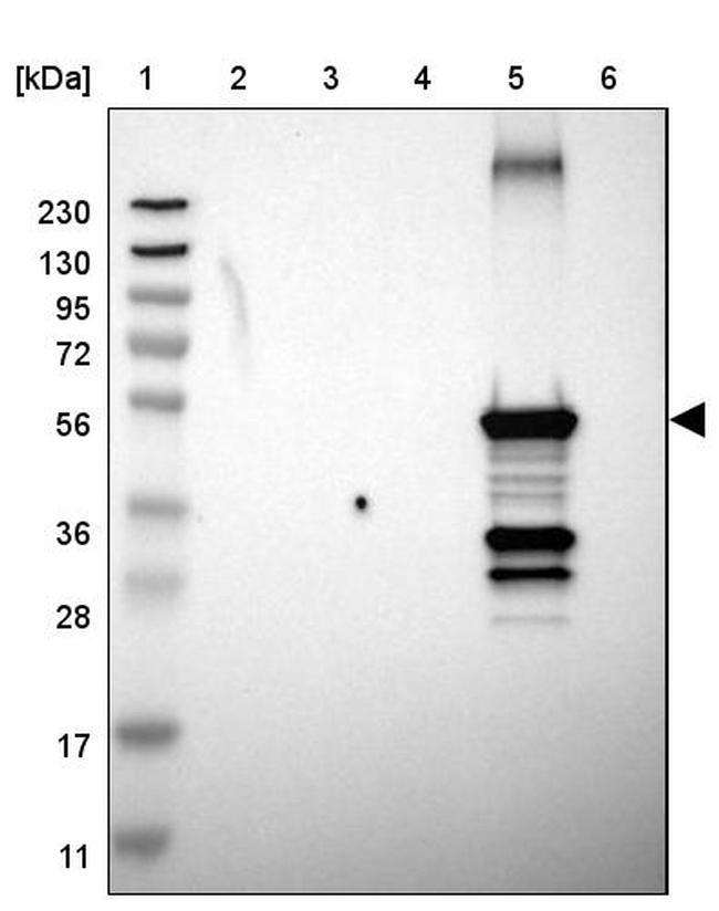 CYP2C8 Antibody in Western Blot (WB)