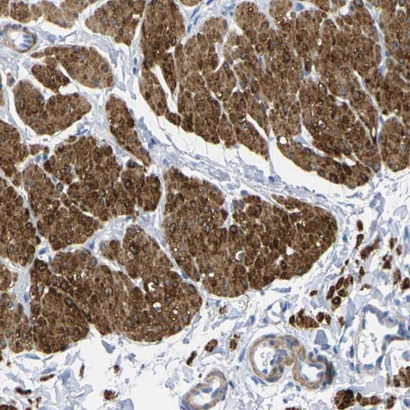 Calponin 1 Antibody in Immunohistochemistry (IHC)