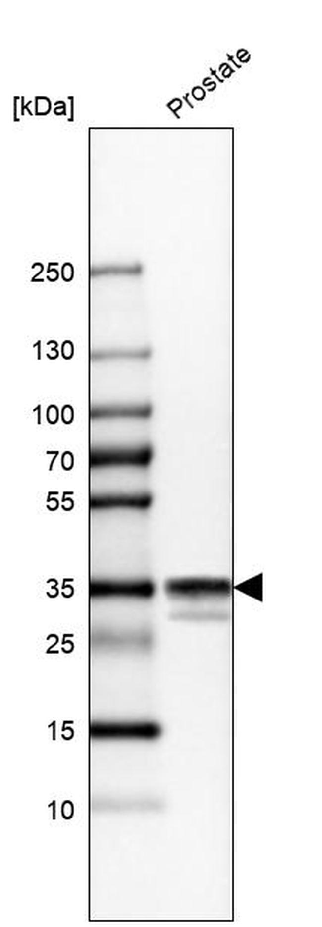 Calponin 1 Antibody in Western Blot (WB)