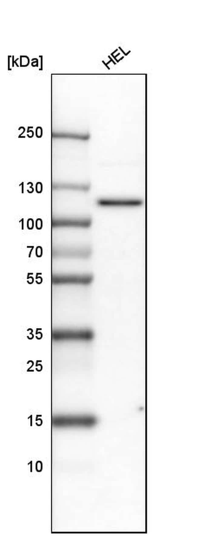 PDE3A Antibody in Western Blot (WB)