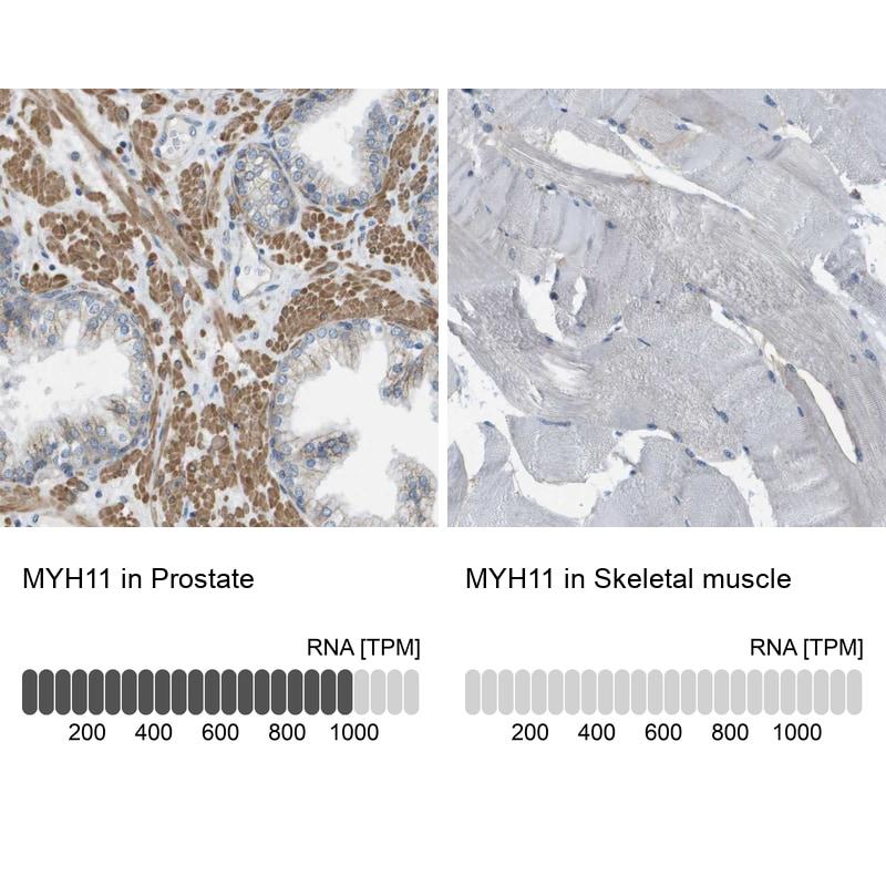 MYH11 Antibody in Relative expression