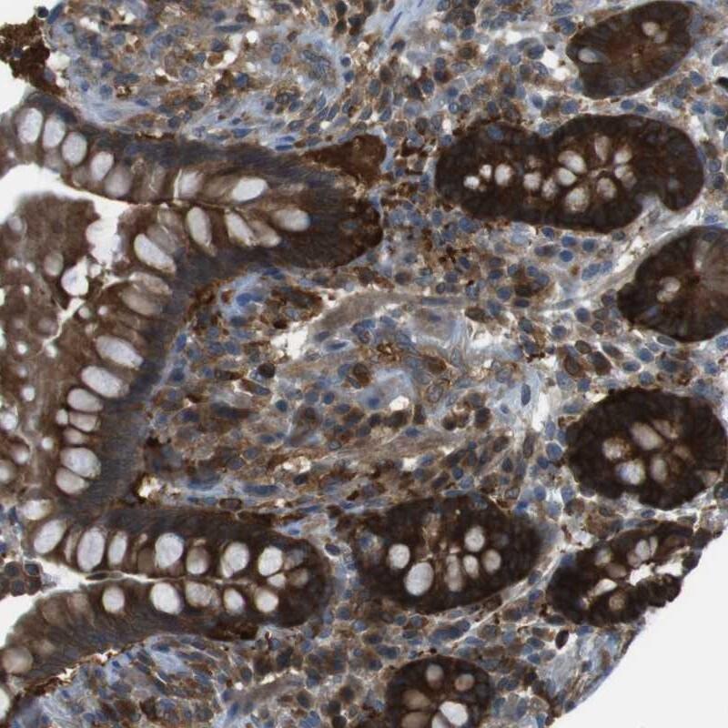 MTHFD1 Antibody in Immunohistochemistry (IHC)