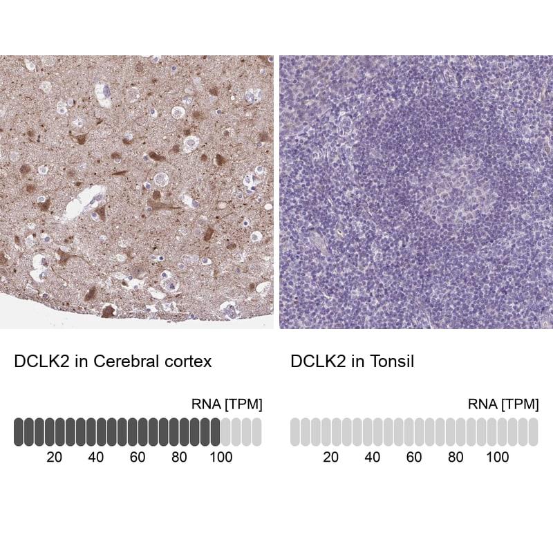DCAMKL2 Antibody in Relative expression
