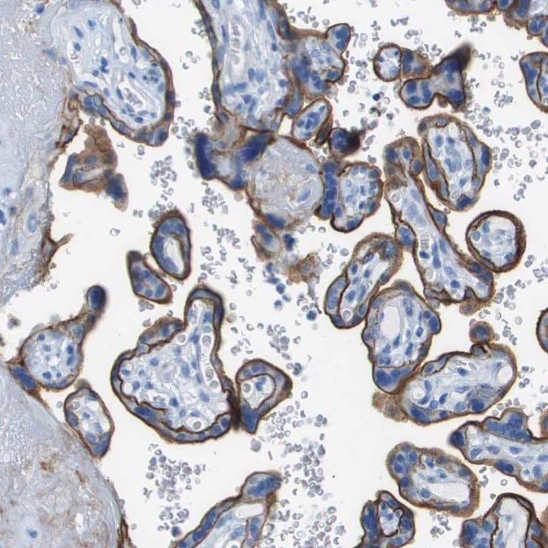 CD46 Antibody in Immunohistochemistry (IHC)